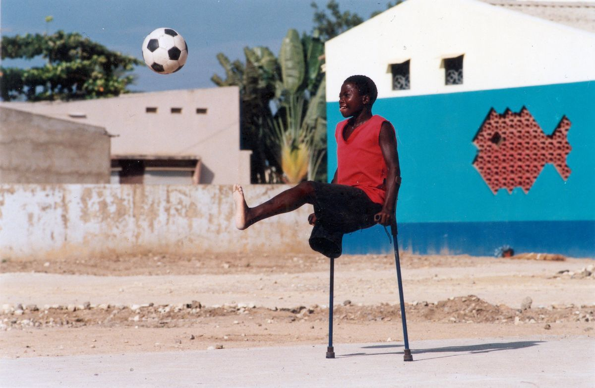 boy on crutches playing with a ball